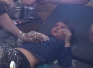 أحد الأطفال المصابين في الغارة