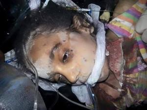طفلة من ضحايا مجزرة بلدة البوعمر
