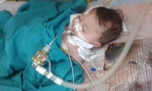 يُعدّ الطفل يوسف حاج حوران أول حالة وفاة تشهدها حلب وريفها بسبب التهاب السحايا