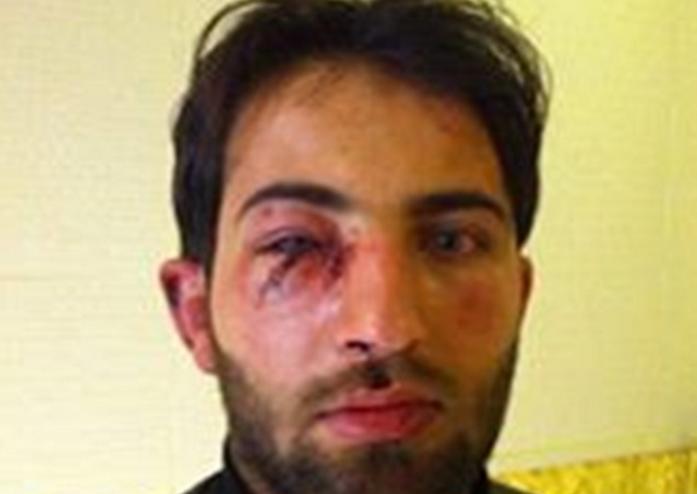 تم إعادة الخطيب إلى سورية بعد ضربه
