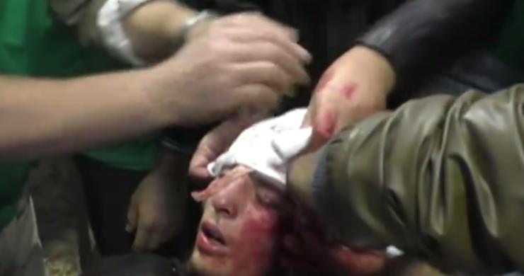 أصيب إبراهيم في رأسه أثناء تغطيته للاشتباكات في ريف حمص