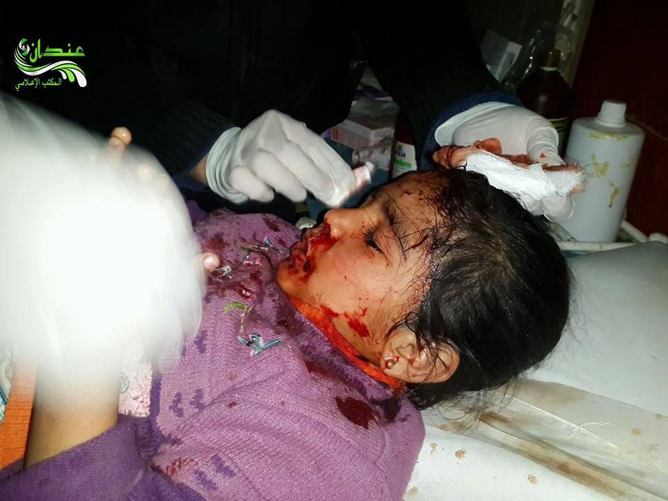 أحد الأطفال الذي أصيبوا في بلدة حيان نتيجة لاستهداف البلدة بالبراميل المتفجرة