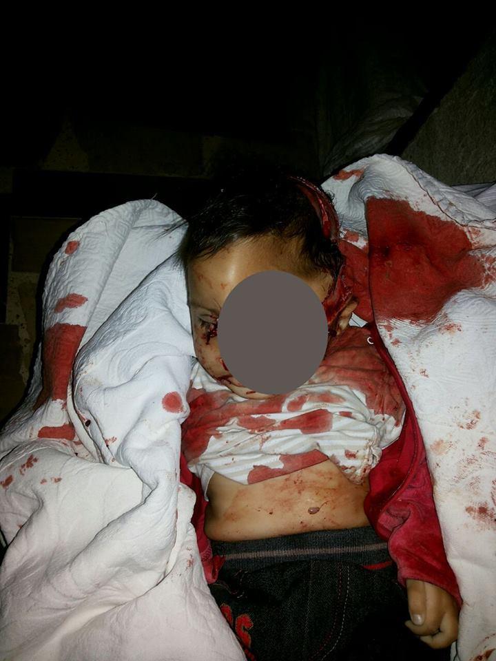 أدّى القصف إلى مقتل الطفل عمر أبو حمدة