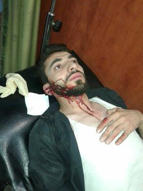 أدّى القصف إلى إصابة المسعف عمر سويد
