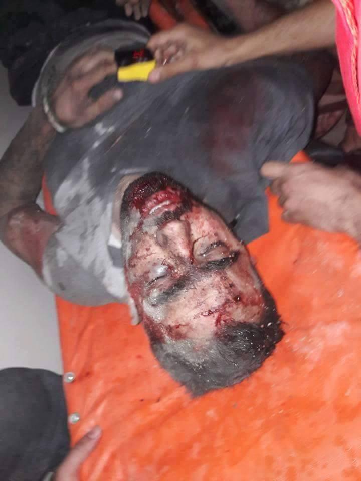 أصيب هادي العبد الله بجروح متوسطة
