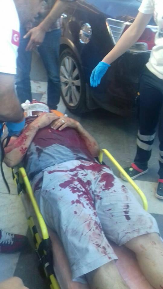 أصيب الإعلامي أحمد عبد القادر بجراح بعد إصابته بإطلاق نار في أورفا