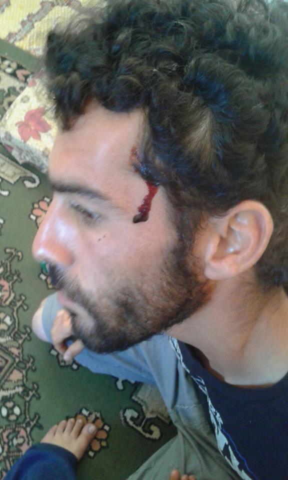 تعرّض لاجئون سوريون للضرب من ميليشيات مسيحية في كسروان-الصورة من صفحة نديم حوري