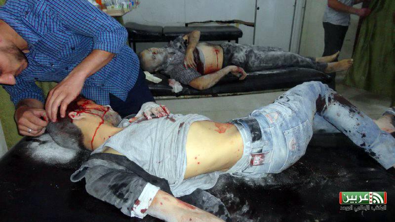 بعض المصابين جراء استهداف مدينة عربين