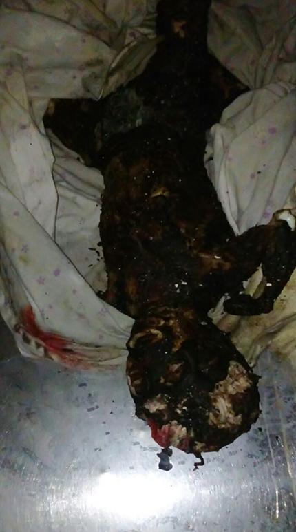 طفل محترق نتيجة تعرضه لقذيفة حارقة