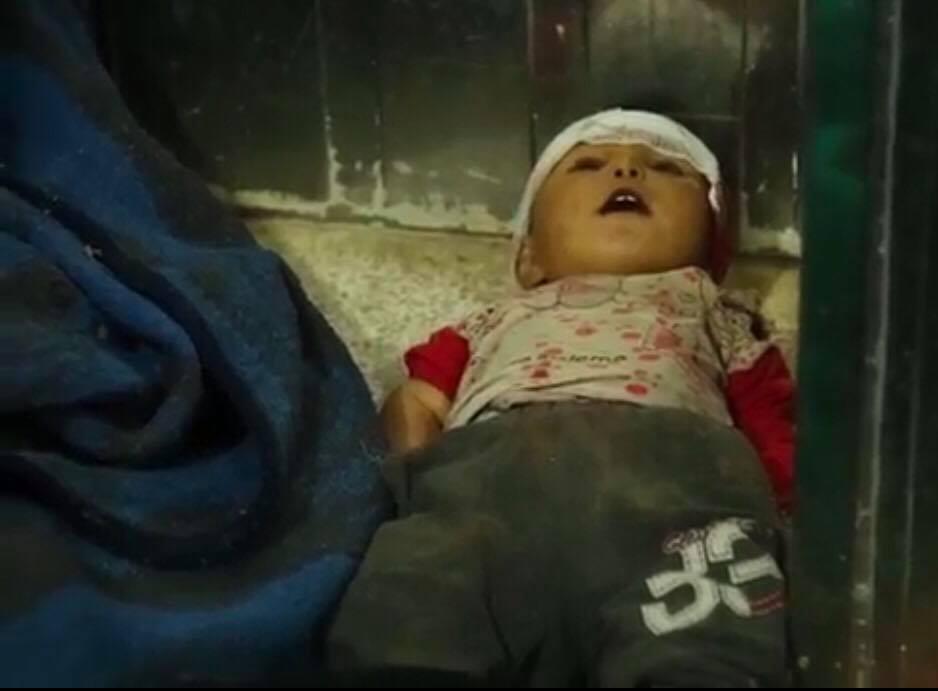 طفلة من ضحايا المجزرة