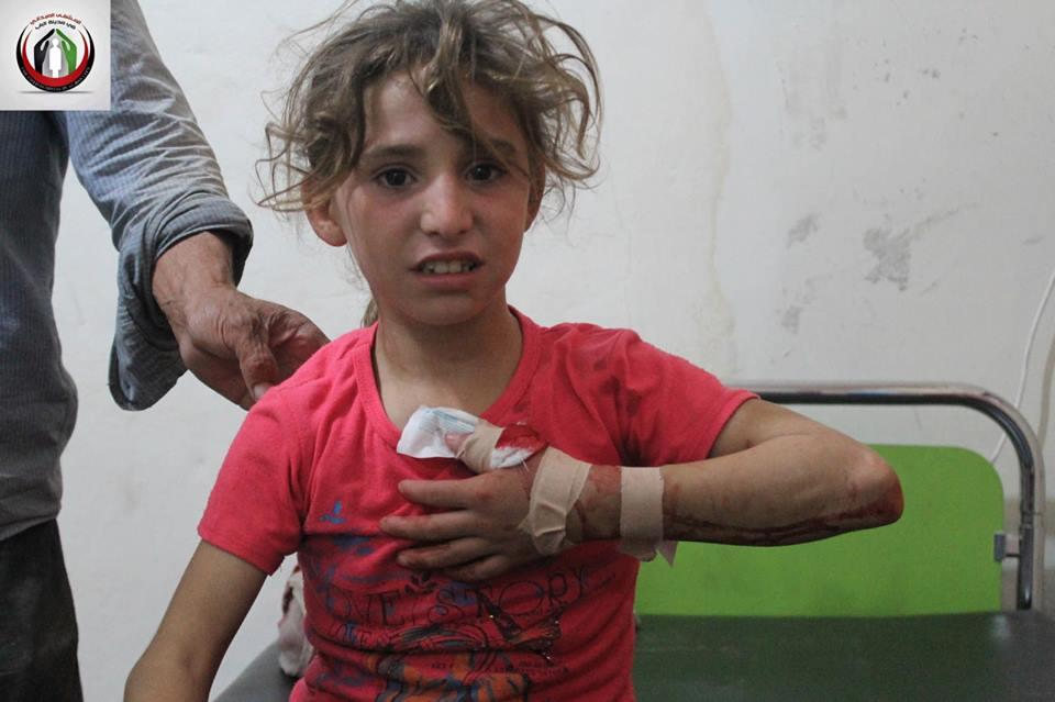 طفلة مصابة نتيجة للإطلاق الرصاص العشوائي
